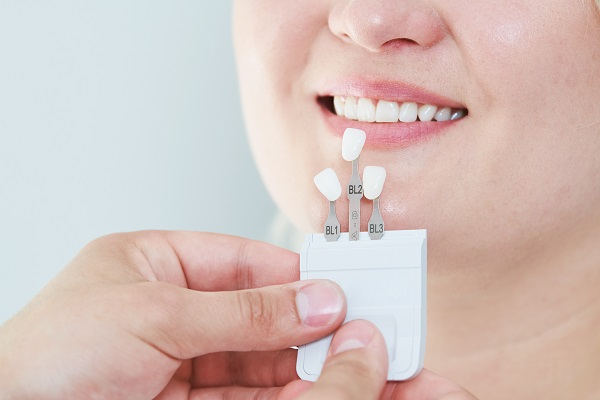 Can Dental Veneers Cover Imperfections On Teeth?